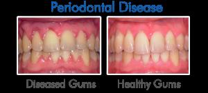 Gum-Disease-Pictures