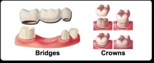 Dental-Crowns-and-Bridges