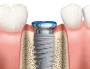 Parker-Family-Dental-Dental-Implants