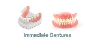 immediate-dentures-300x133