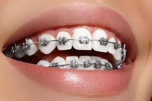 Metal-brace-to-align-and-straighten-crowded-teeth-min