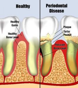 gum-disease-periodontial-disease