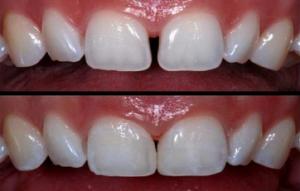 diastema-closure-500x500