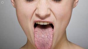 dry mouthhhhhhhh