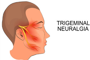 202003180308331587_Trigeminal-neuralgia-can-be-cured-medically-and_SECVPF