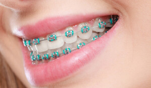 rubber-bands-for-braces-scaled-1170x684